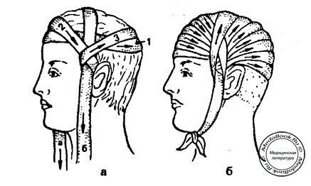 Техника наложения повязок на голеностопный сустав