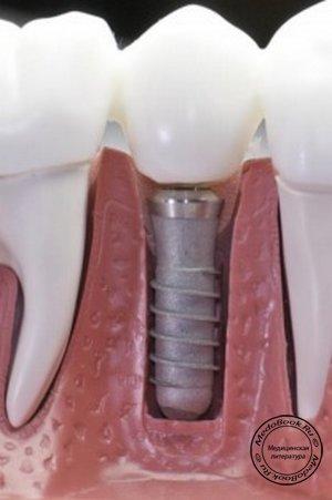 Вставляем зубы в витебске
