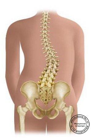 Упражнения от сколиоза грудо-поясничного отдела