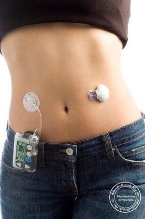 Какие лекарства бесплатные положены диабетикам бесплатно