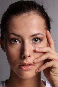Как убрать сухость глаз