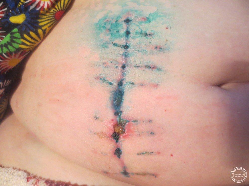 Перевязка послеоперационной раны в домашних условиях