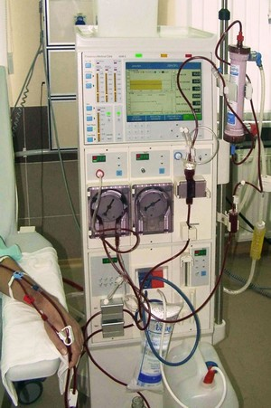 центрифужный плазмаферез при повышенном холестерине