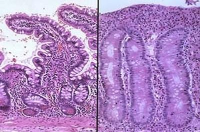 Микропрепарат слизистой кишечника больного спру (справа) и здорового  человека (слева) 95ce9643610