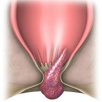 Выпадение узлов при геморрое после родов