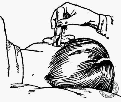 Народные средства лечения косточек на стопах