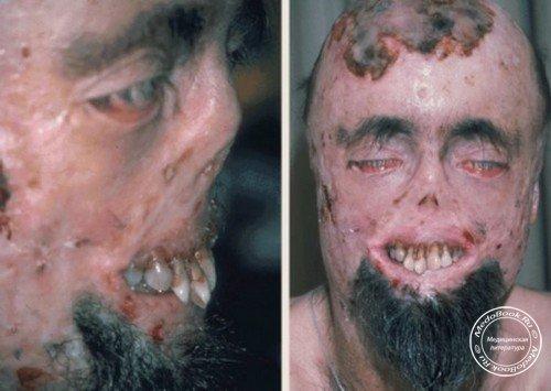 порфирия что это за болезнь фото