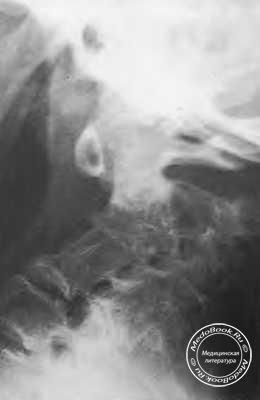 Туберкулезный спондилит шейного отдела позвоночника